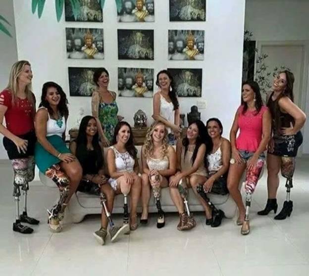 Injured women